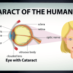 What Are Cataracts And How They Impact Your Life