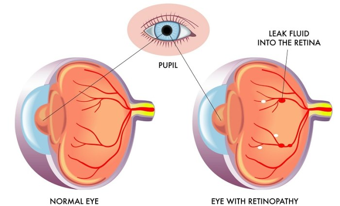 The changes in an eye affected by retinopathy