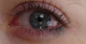 What Causes Watery Eyes and How Do You Get Diagnosed?
