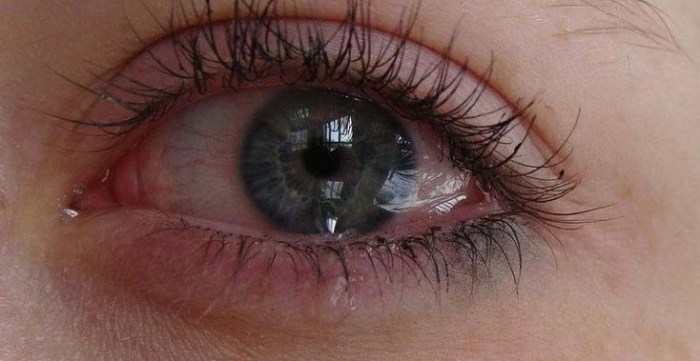 woman suffering from watery eyes