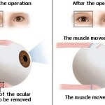 How Strabismus Surgery is Performed