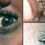 How to Remove Ingrown Eyelash from Eyelid: 10 Treatments to Try