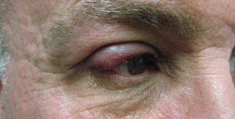 Ocular Rosacea: Symptoms, Causes, and Treatment