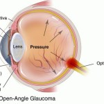 open angle glaucoma illustration