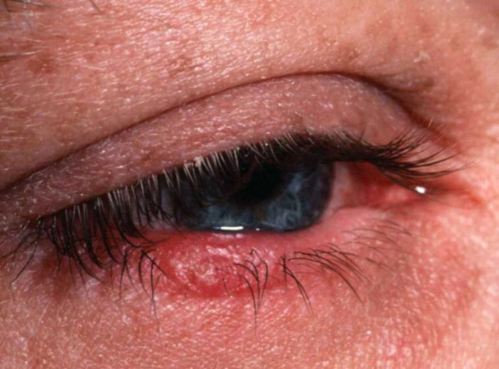 Red and swollen eyelids caused by Ocular Rosacea
