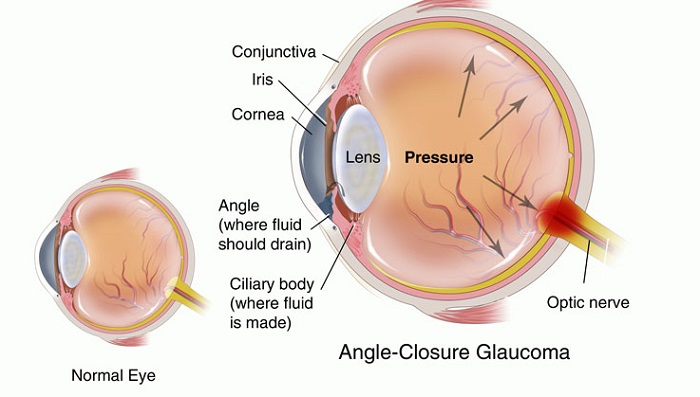 closed angle glaucoma illustration