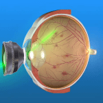 Panretinal Photocoagulation laser treatment for the eye