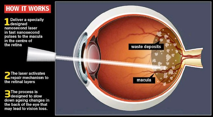 how laser surgery for macular degeneration works