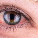 How to Stop Eye Irritation from Contacts: 6 Things You Can Do