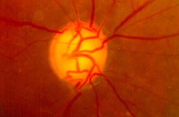 Large Cup-to-Disc Damage from Glaucoma – Only a Small Rim of Nerve Tissue Remaining and Glaucoma