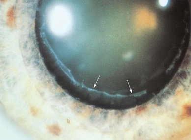 Pseudoexfoliation of the Lens Capsule Which Can Block the Trabecular Meshwork and Block the Flow of Fluid Out of the Eye