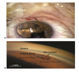 Cypass Micro-stent and glaucoma