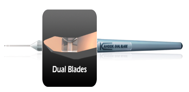 Kahook Dual Blade and Glaucoma