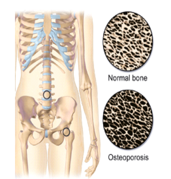 How Osteoporosis Affects The Bones Of The Hip Total Orthopedics