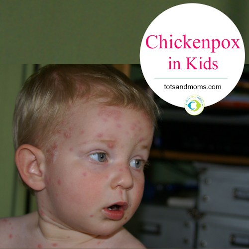 Chickenpox in Babies & Kids - Symptoms, Care, Food & Prevention hindi kannada