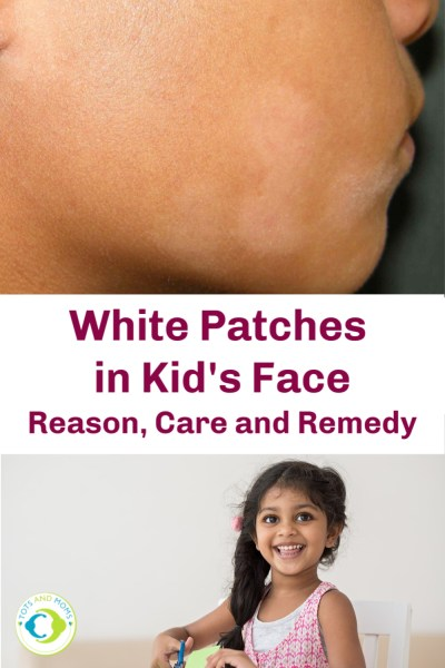 White Patches In Kids Face Reasons Care Remedy Home Remedies Symptoms