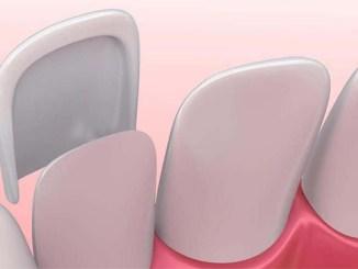 Différenc entre facettes dentaires en céramique et en composite