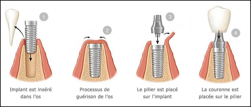 procedure-implant