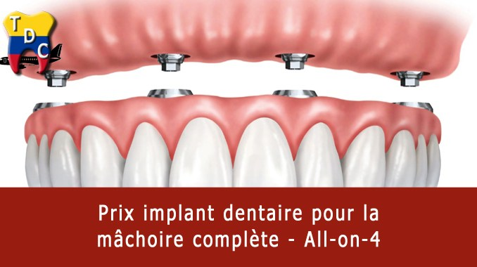 Prix implant dentaire all-on-4