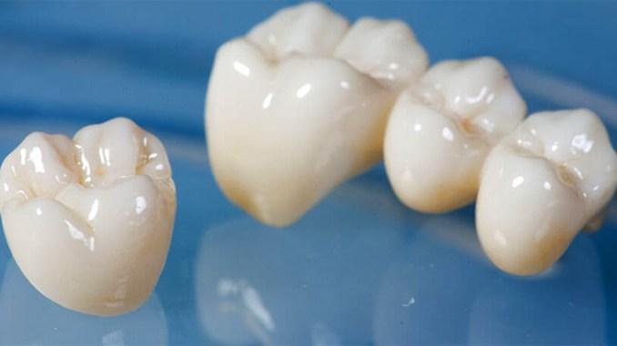 Couronne dentaire en zirconium