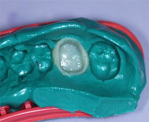 empreinte-dental