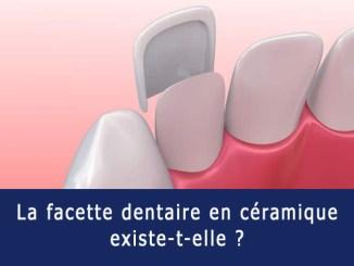 Facette dentaire en céramique
