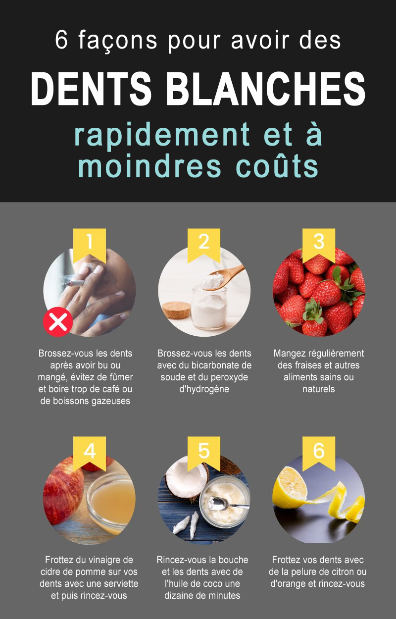 6-facons-dents-blanchent