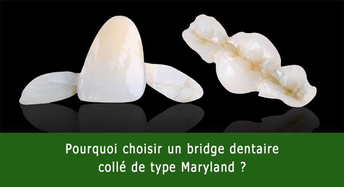 bridge-colle