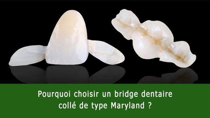 Bridge dentaire collé