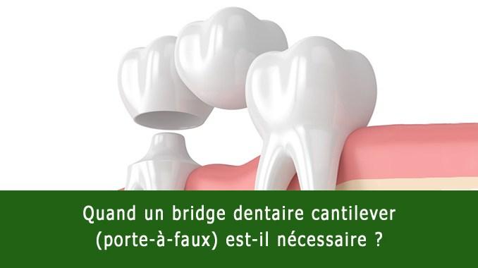 Bridge dentaire cantilever