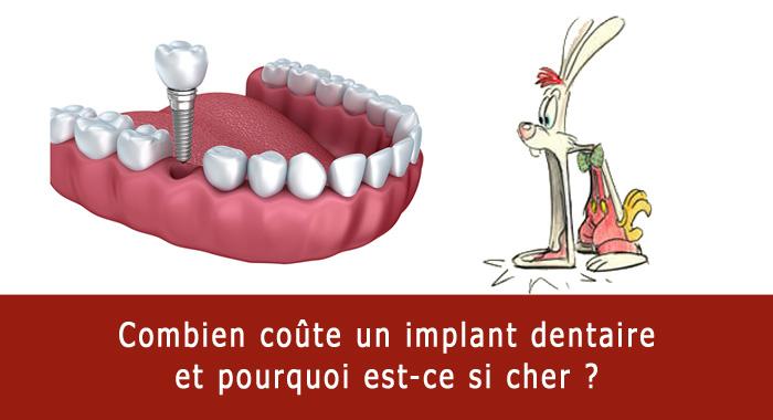 combien-implant