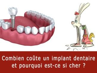 Combien coûte un implant dentaire