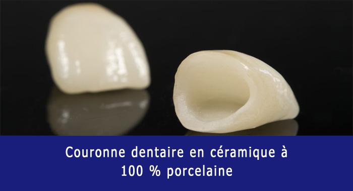couronne-ceramique