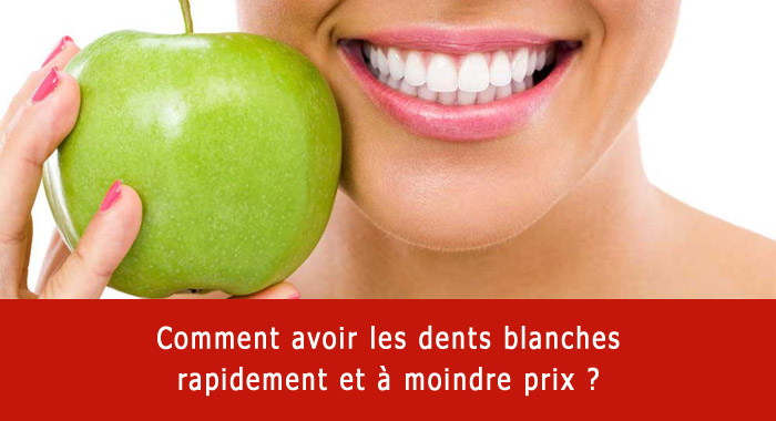 dents-blanches