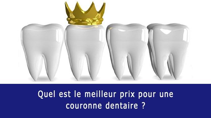 Meilleur prix pour couronne dentaire