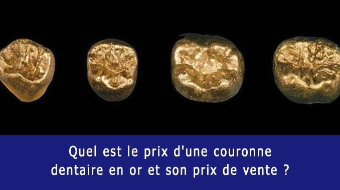 Combien couronne dentaire en or