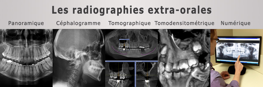 radiographies-dentaires-extra-orales