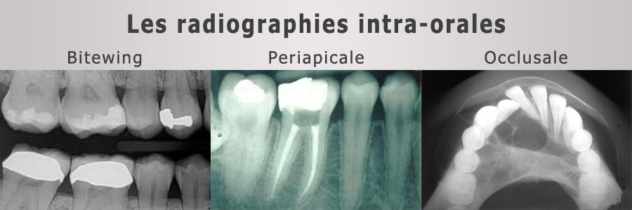 radiographies-inter-orales