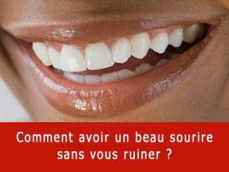 Comment avoir un beau sourire ?