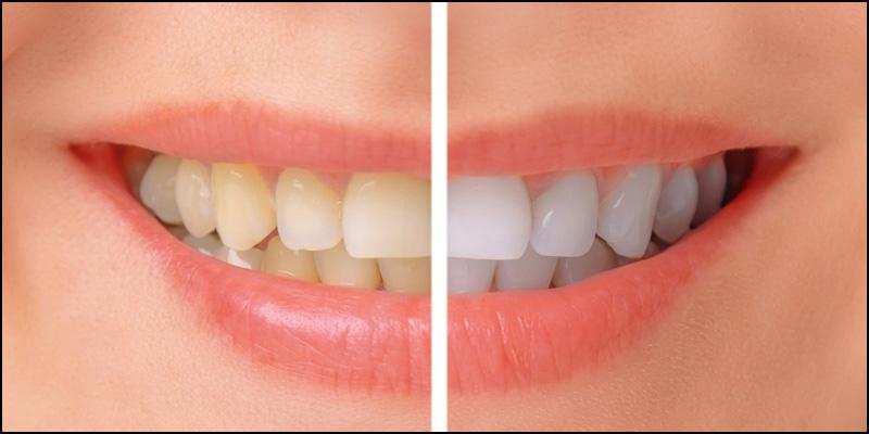 blanchiment-dents