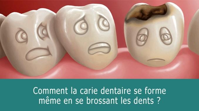 Comment la carie dentaire se forme ?
