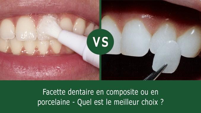 Facettes dentaires en composite ou en porcelaine