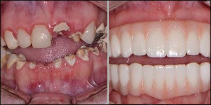 dents-complet