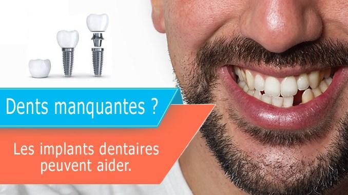 Dents manquantes