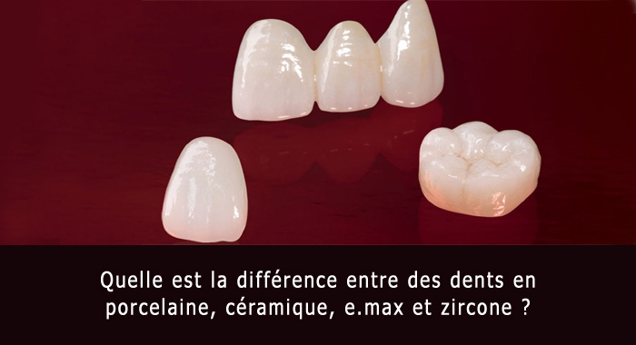 dents-porcelaine