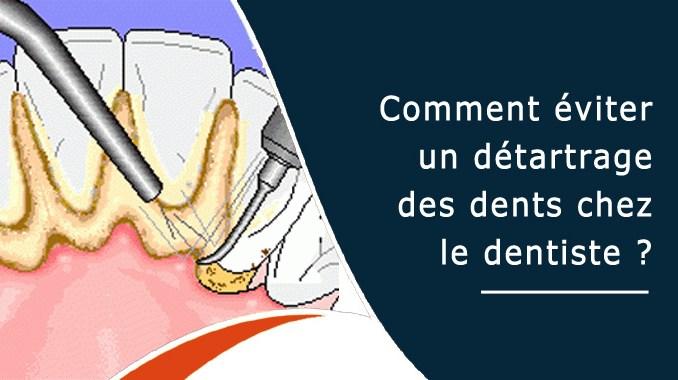 Détartrage des dents