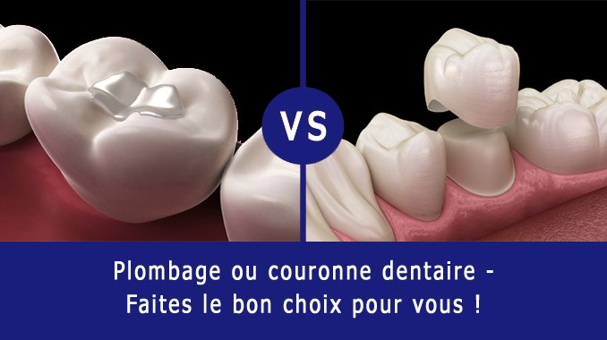 Plombage ou couronne dentaire
