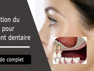 Élévation sinusale pour implant dentaire