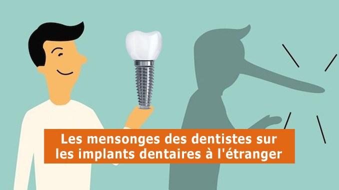 Mensonges des dentistes sur les implants