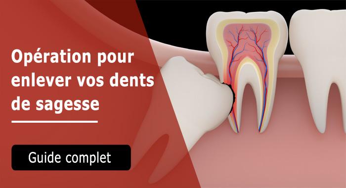 operation-dent